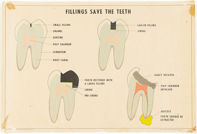 Diagrams of four teeth repaired in different ways